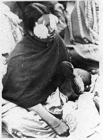 Blinded woman nursing, in Bhopal, India, after chemical catastrophe of 1984